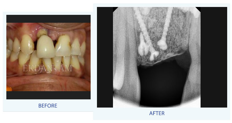 Dental implants in jaipur, tooth implant in india