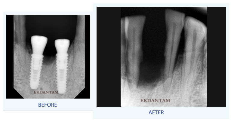 Dental implant clinic in jaipur
