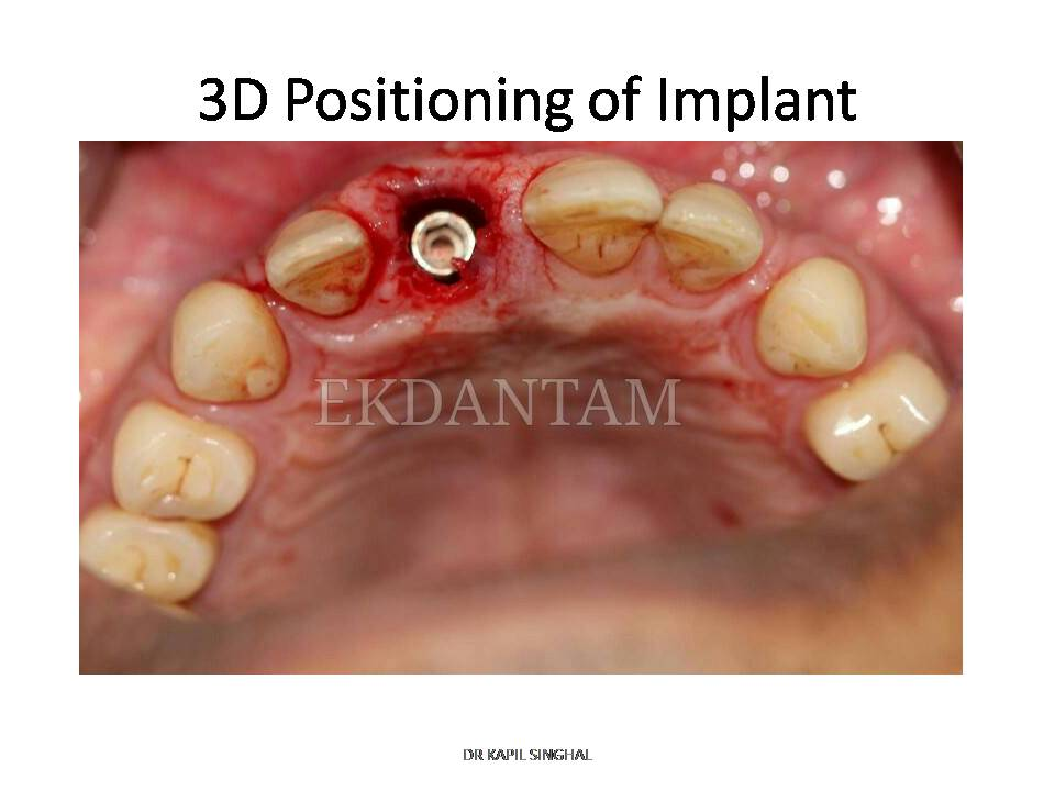 Maxillary Anterior Tooth Dental Implant With Cosmetic