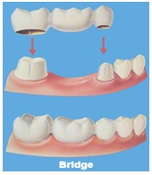 Bridge to replace a missing tooth, Dental implant in Jaipur, Bets Dentist in Jaipur, Dental clinic in jaipur