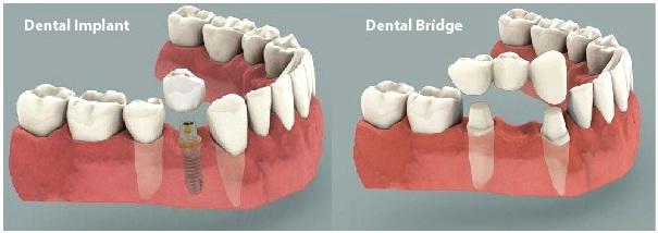 Implant V/s Bridge, Dental clinic in jaipur, Best Dentist in jaipur, Dental implant in jaipur