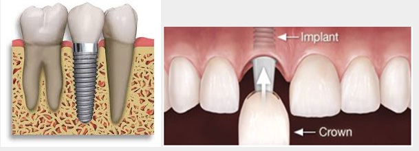 Single tooth Implant,DENTAL IMPLANTS, Dentist in jaipur, Best Dental clinic in india