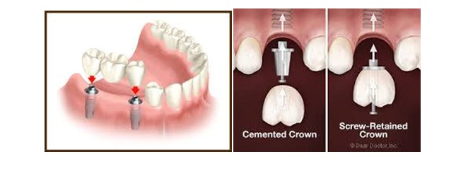 What is the procedure of Dental Implants, Best Dental Implant In Jaipur, Best Dentist in Jaipur