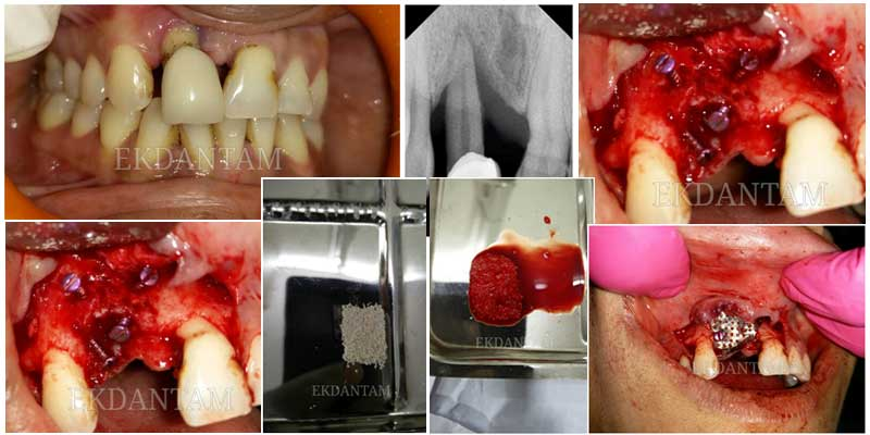 Bone loss due to Trauma or pyorrhea, full tooth or dental implant in jaipur