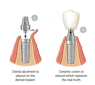 Dental implants in jaipur, best dental implants in india, dental abutment placed on the dental implants, replaces the real tooth