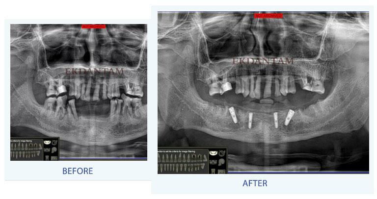 Dental implant clinic in jaipur