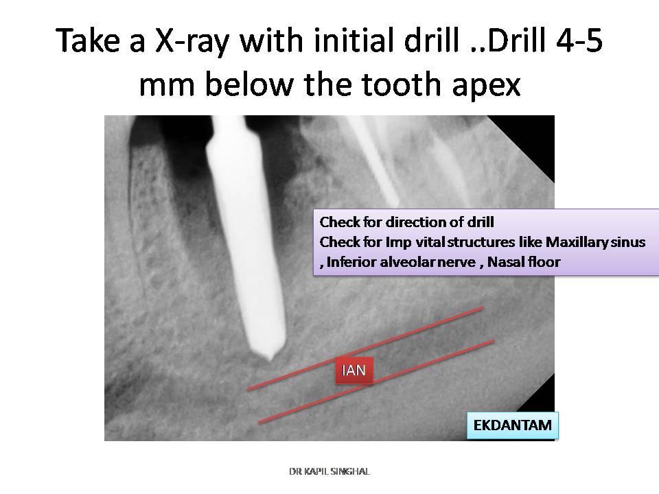 dentalimplant