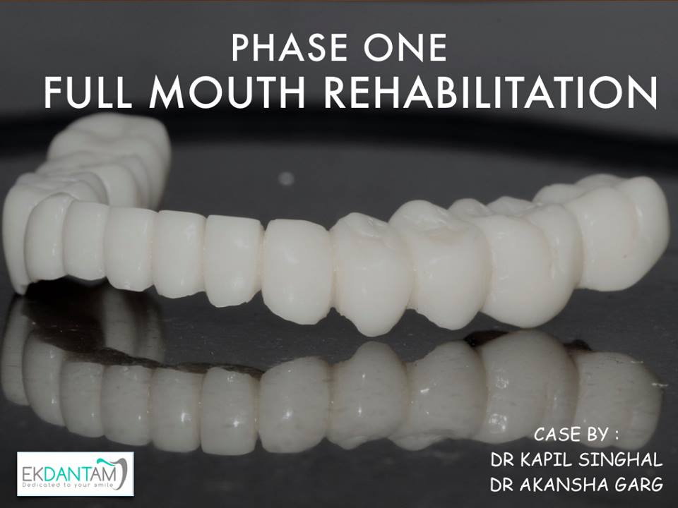 best dental implant in jaipur