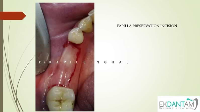 Delayed implant in lower right premolar and Molar region