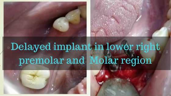 Delayed implant in lower right premolar and Molar region