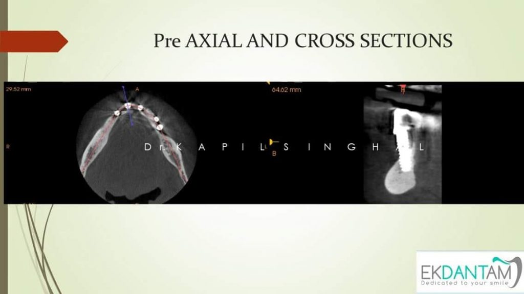 Pre AXIAL and Cross Section