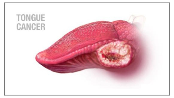 Mouth Cancer : Causes, Early Signs, Treatment, Diagnosis - Jaipur
