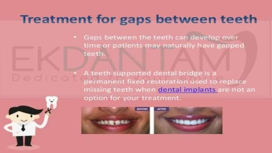 gap between teeth Treatment