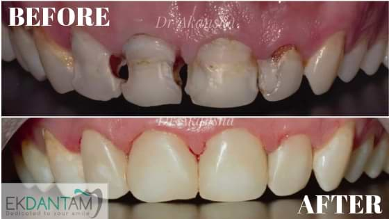 DIRECT COMPOSITE RESTORATIONS