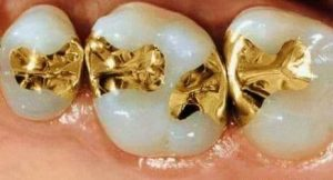 Gold Fillings