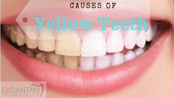 Yellow Teeth (1)