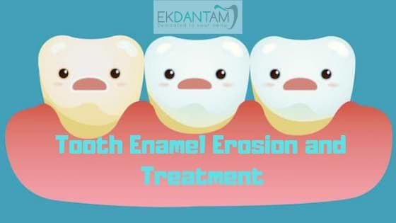 Tooth Enamel Erosion and Treatment (1)