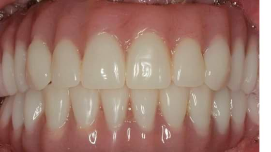 Full-mouth-dental-Implant-with-immediate-loading